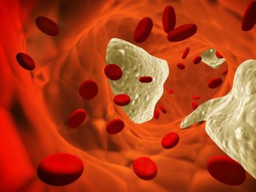 Anticuerpos que disuelven los depósitos de grasa en las arterias
